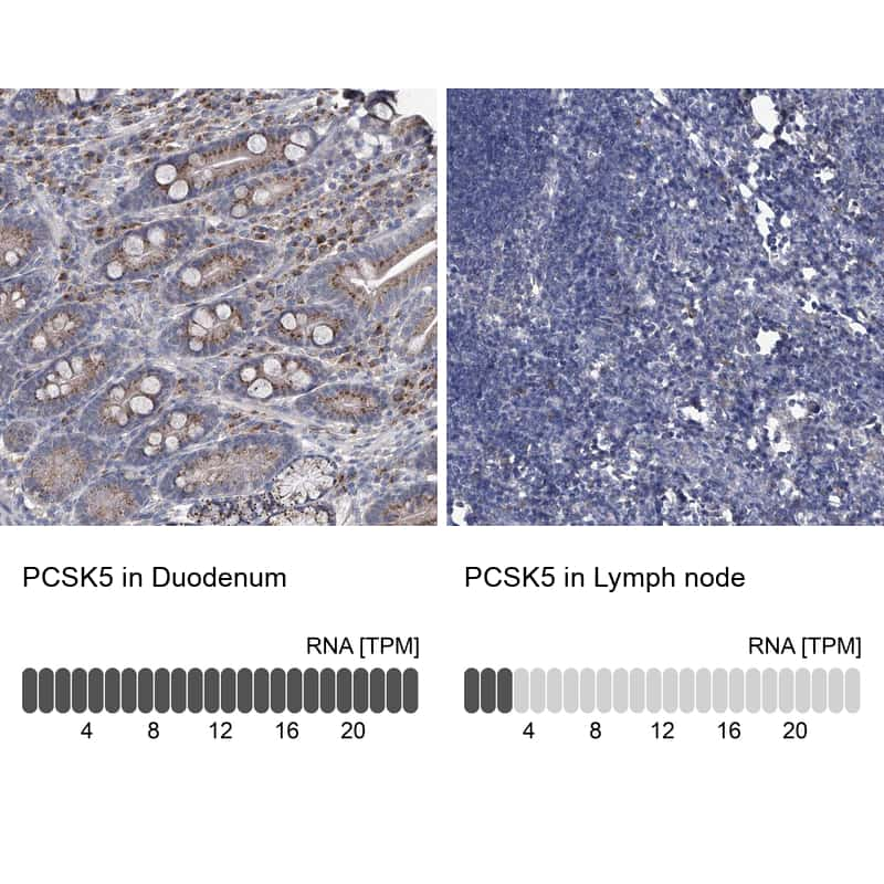 PCSK5 Antibody in Relative expression
