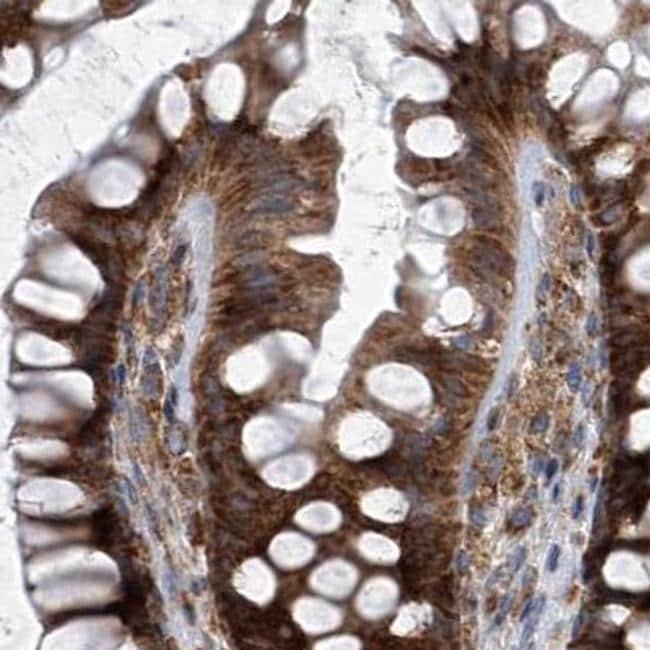 ZC3H15 Antibody in Immunohistochemistry (IHC)