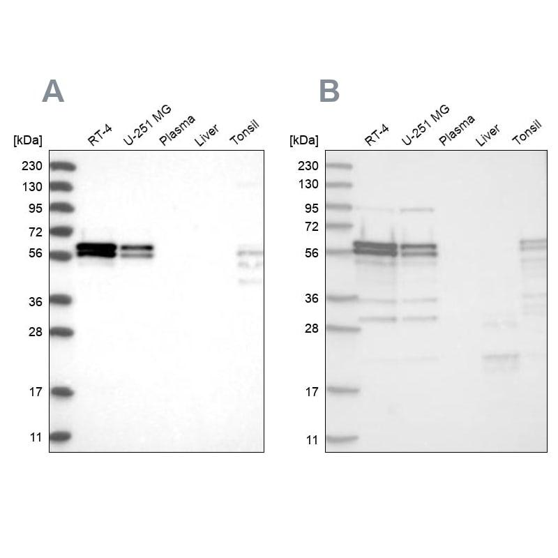 ZC3H15 Antibody in Western Blot (WB)