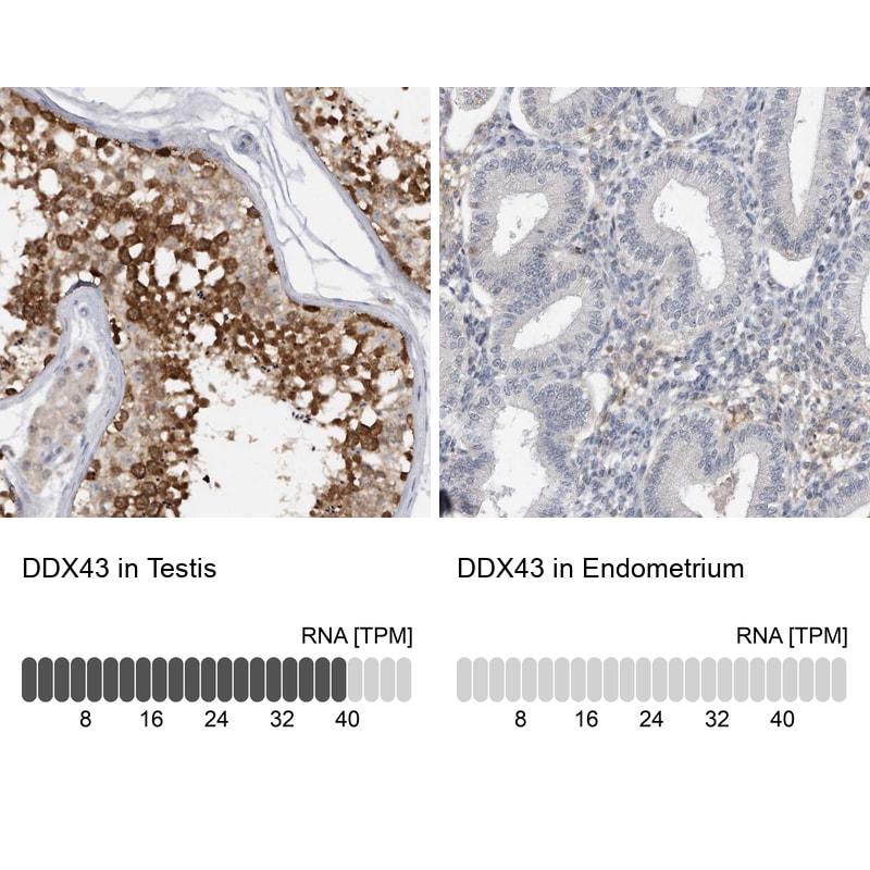 DDX43 Antibody in Relative expression