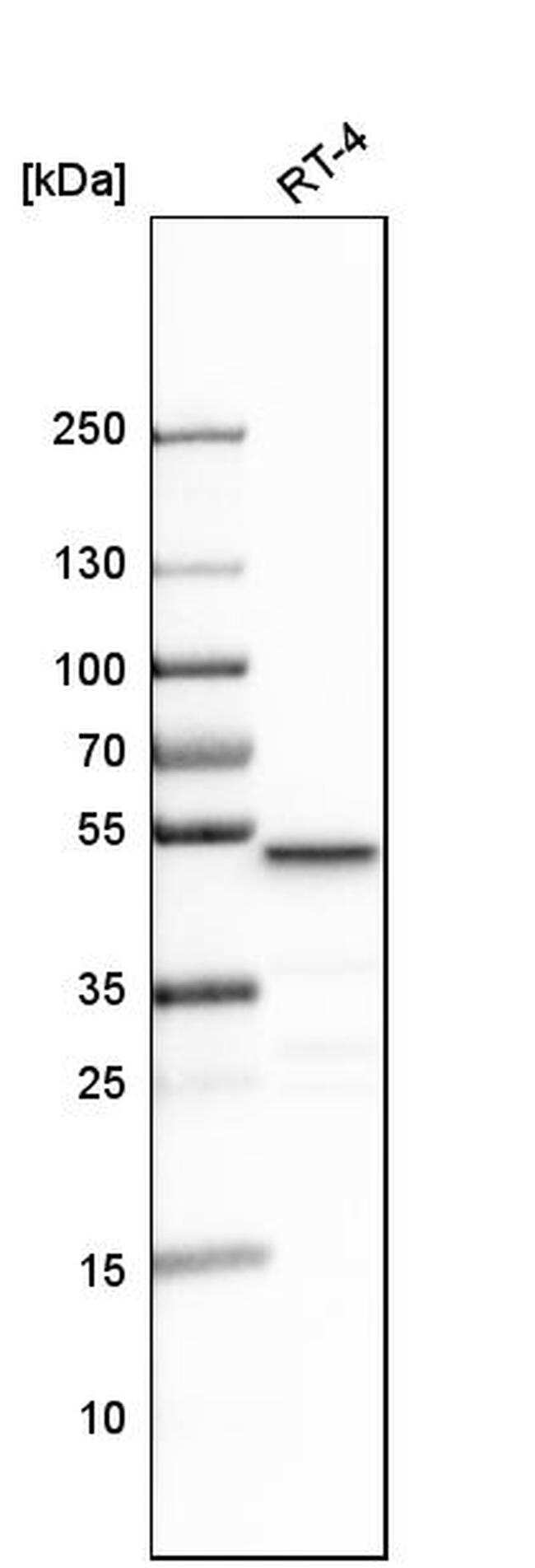 LCOR Antibody in Western Blot (WB)