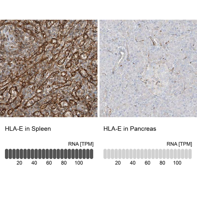 HLA-E Antibody in Relative expression