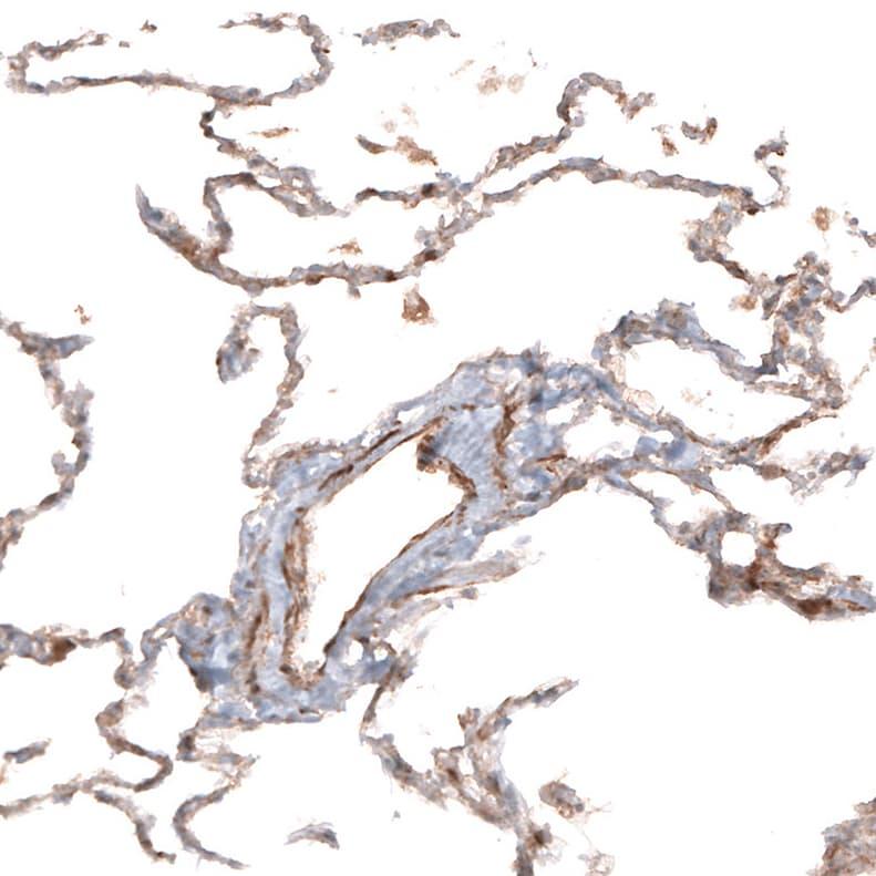 HAS3 Antibody in Immunohistochemistry (IHC)