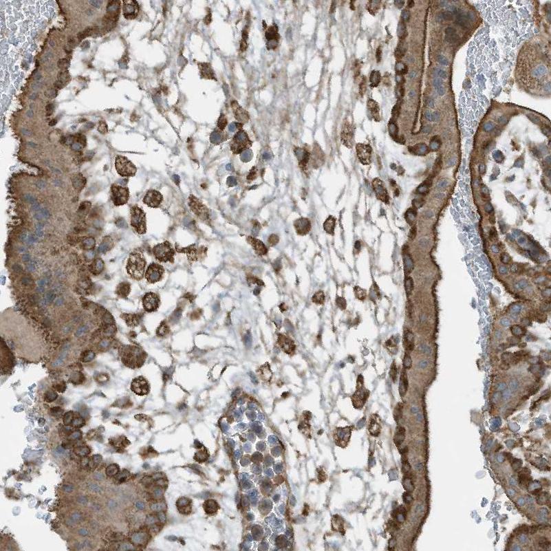 C6orf150 Antibody in Immunohistochemistry (IHC)