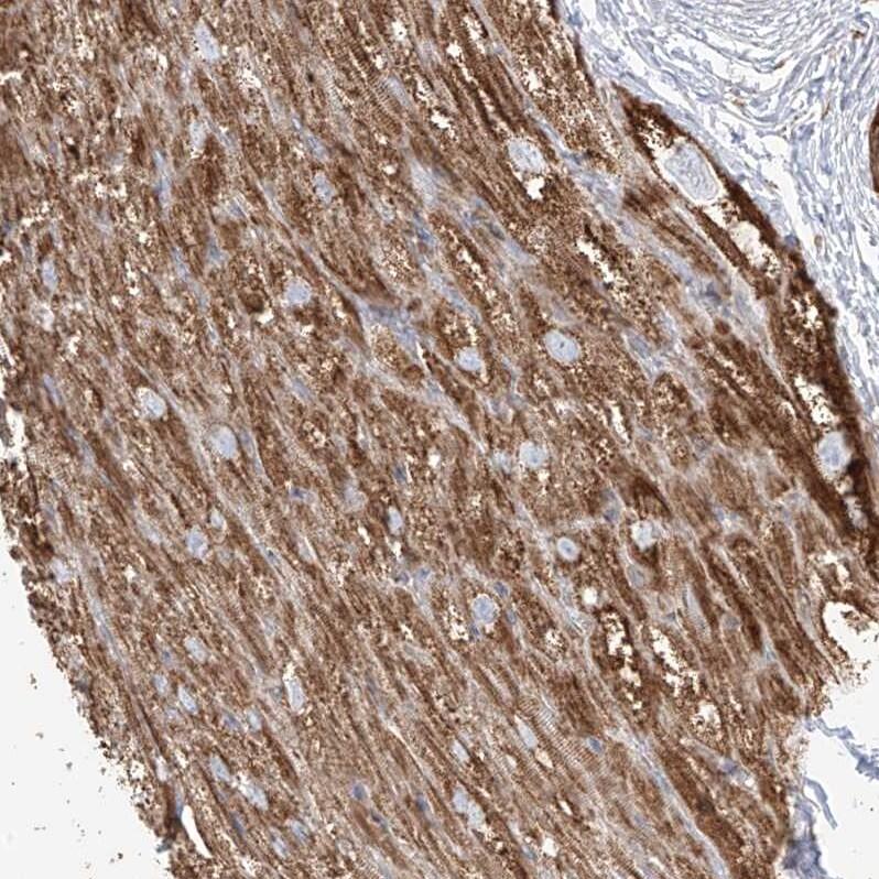 PLCL1 Antibody in Immunohistochemistry (IHC)