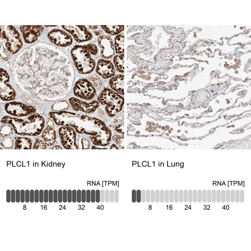 PLCL1 Antibody in Relative expression