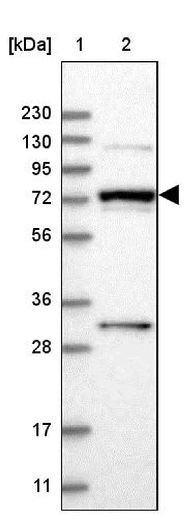 MAN1A2 Antibody in Western Blot (WB)