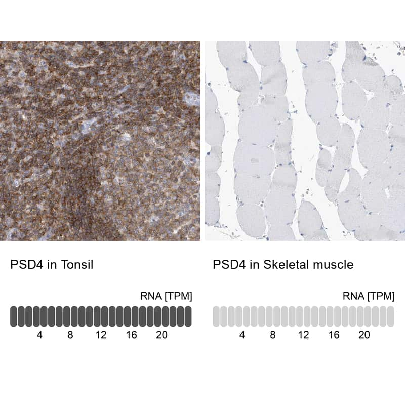 PSD4 Antibody in Relative expression