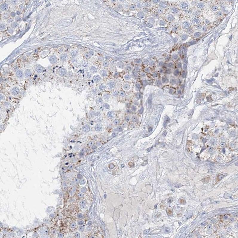 TBC1D7 Antibody in Immunohistochemistry (IHC)