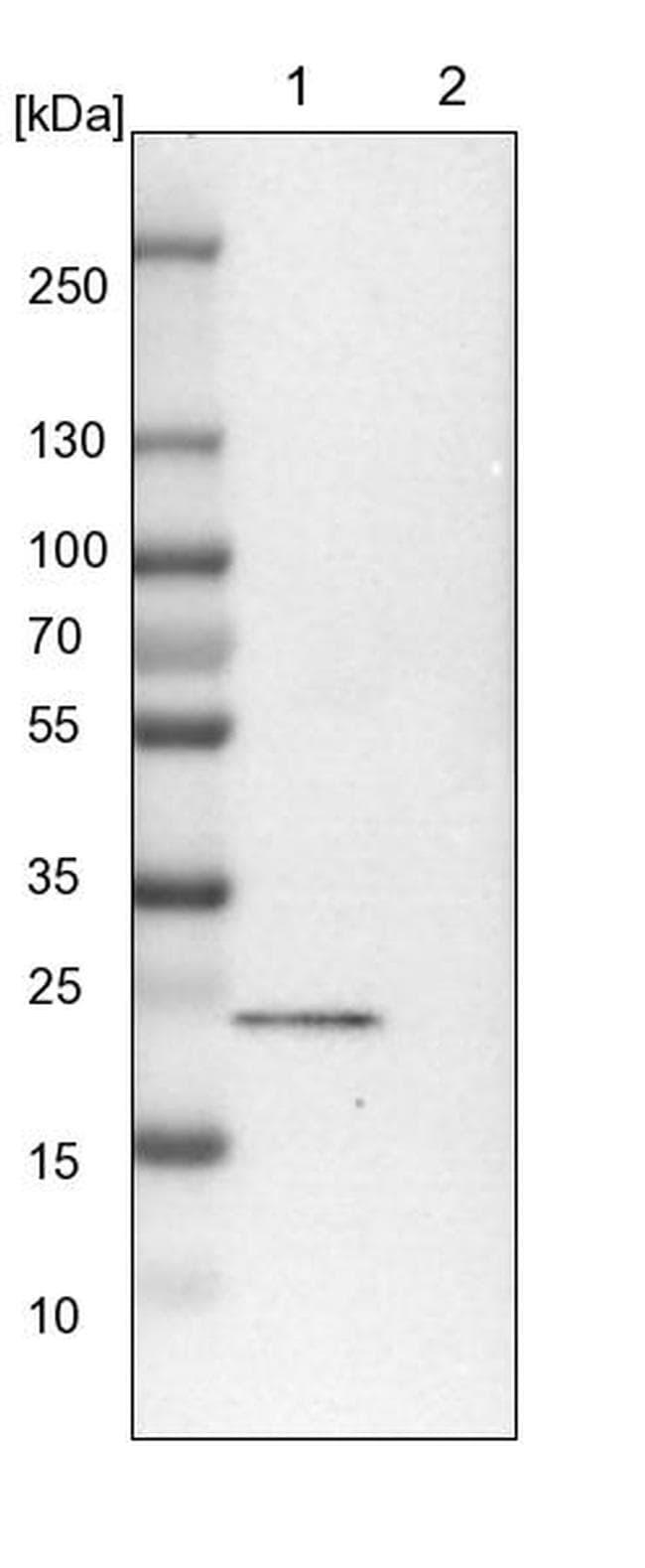 TBC1D7 Antibody in Western Blot (WB)