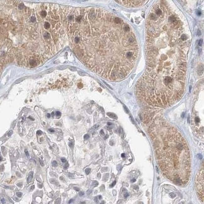 C13orf7 Antibody in Immunohistochemistry (IHC)