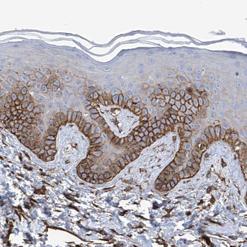 UBTD1 Antibody in Immunohistochemistry (IHC)