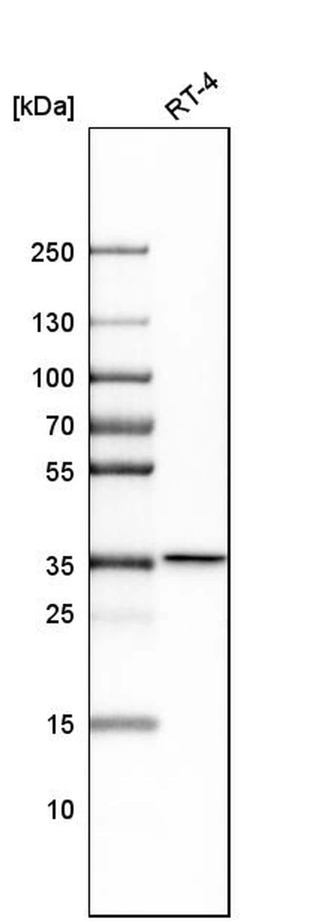 NAGK Antibody in Western Blot (WB)