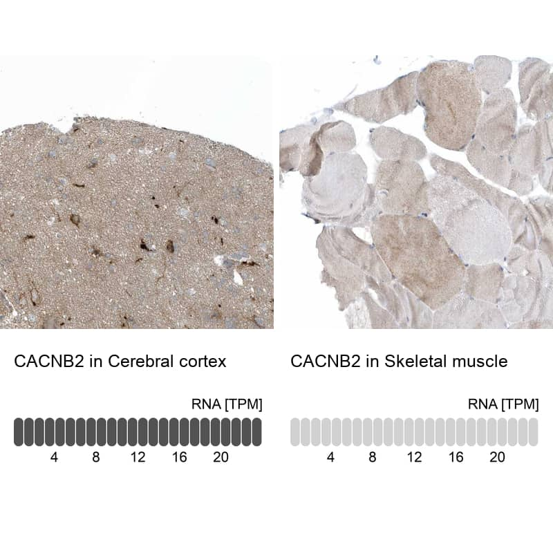 CACNB2 Antibody in Relative expression