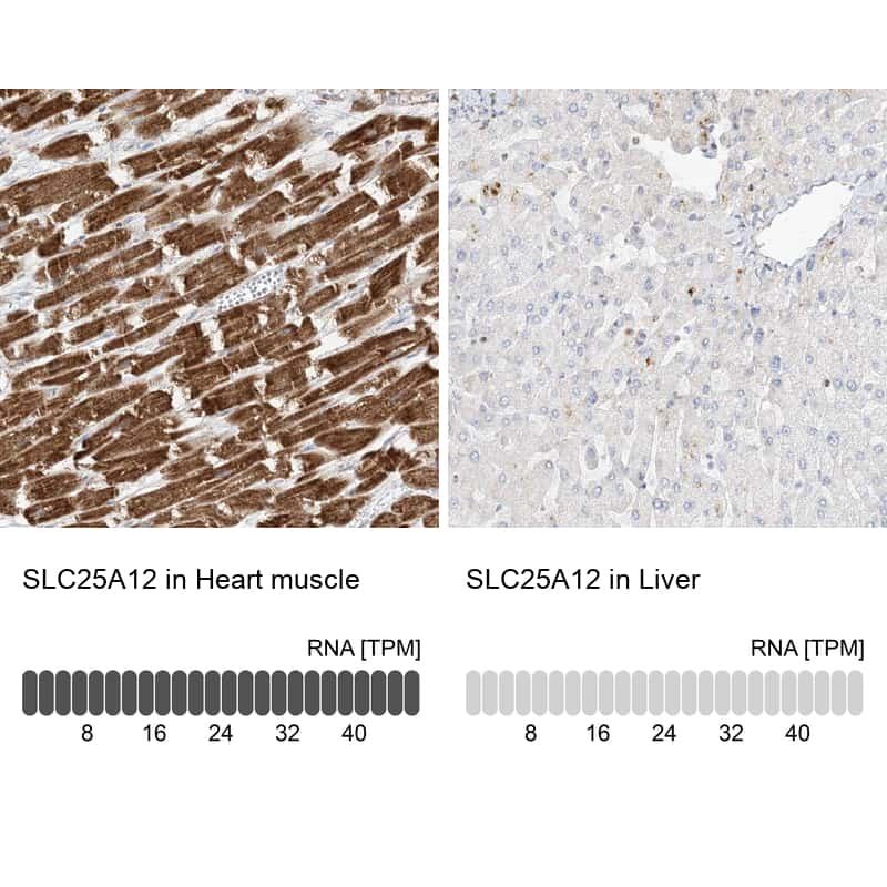 SLC25A12 Antibody in Relative expression