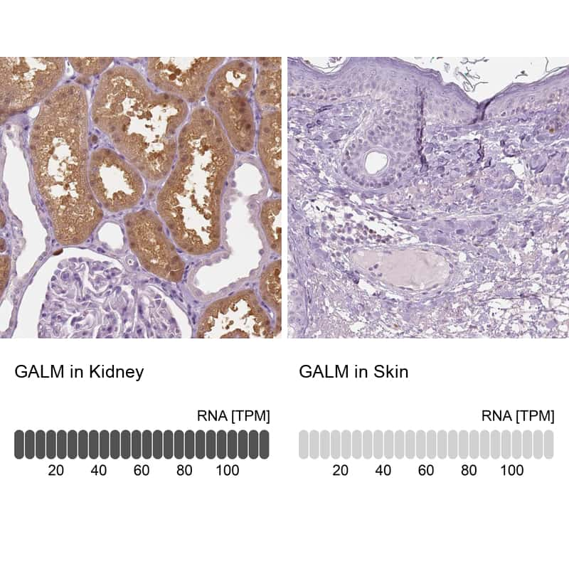 GALM Antibody in Immunohistochemistry (IHC)