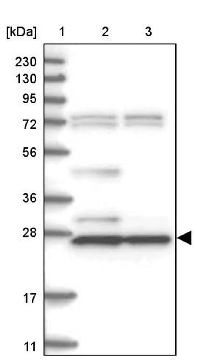 HNMT Antibody in Western Blot (WB)