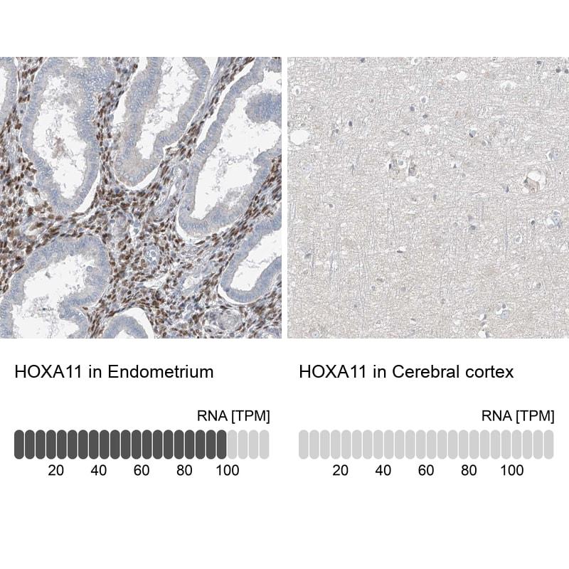 HOXA11 Antibody in Relative expression