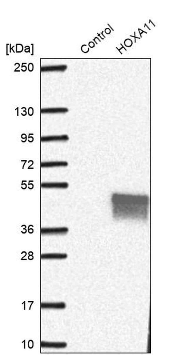 HOXA11 Antibody in Western Blot (WB)