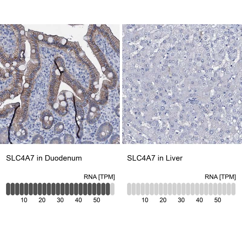 SLC4A7 Antibody in Relative expression