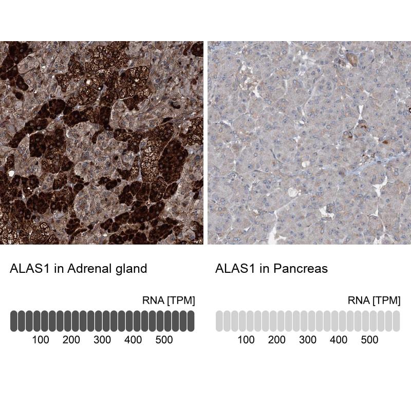 ALAS1 Antibody in Relative expression