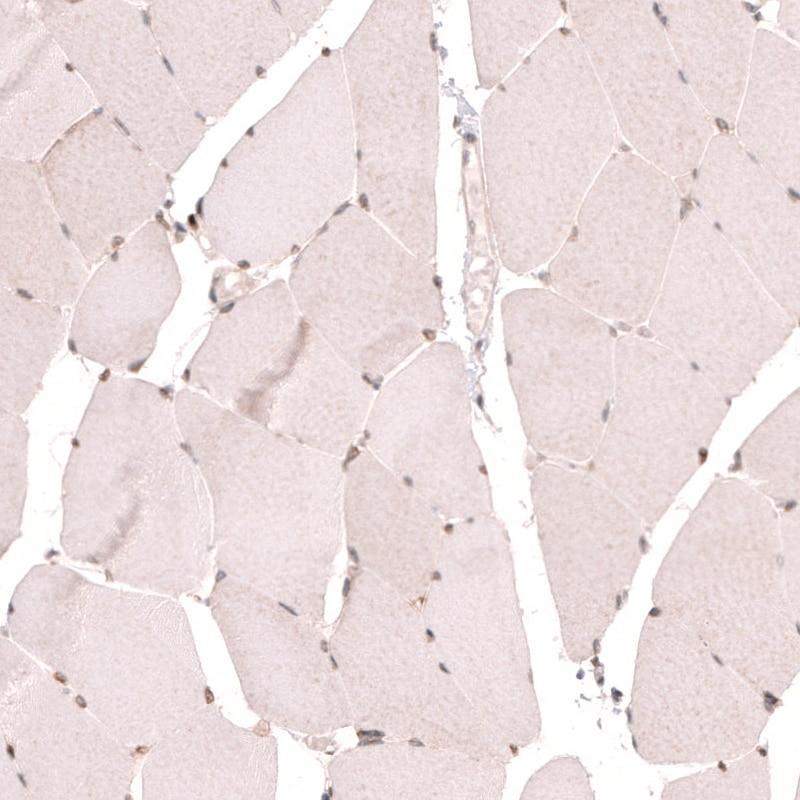 NUP54 Antibody in Immunohistochemistry (IHC)
