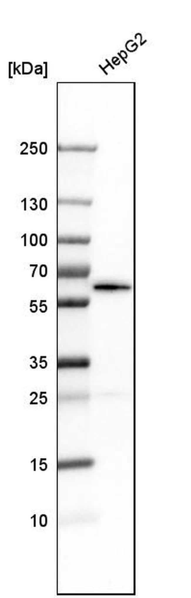 NUP54 Antibody in Western Blot (WB)