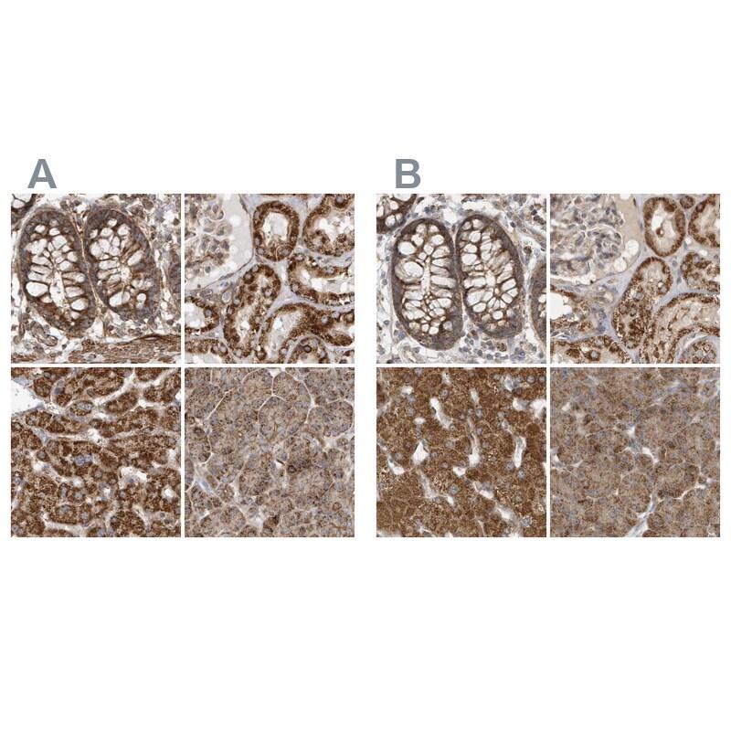 MUT Antibody in Immunohistochemistry (IHC)
