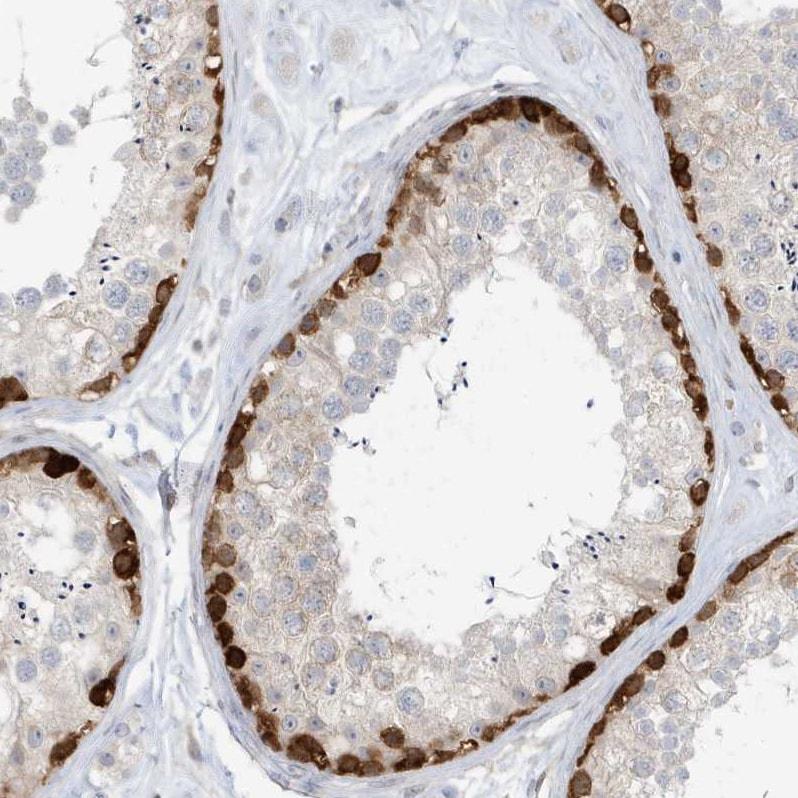 Mgea5 Antibody in Immunohistochemistry (IHC)