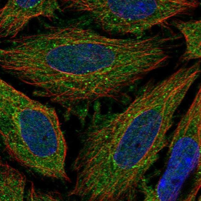 ELOVL3 Antibody in Immunofluorescence (IF)