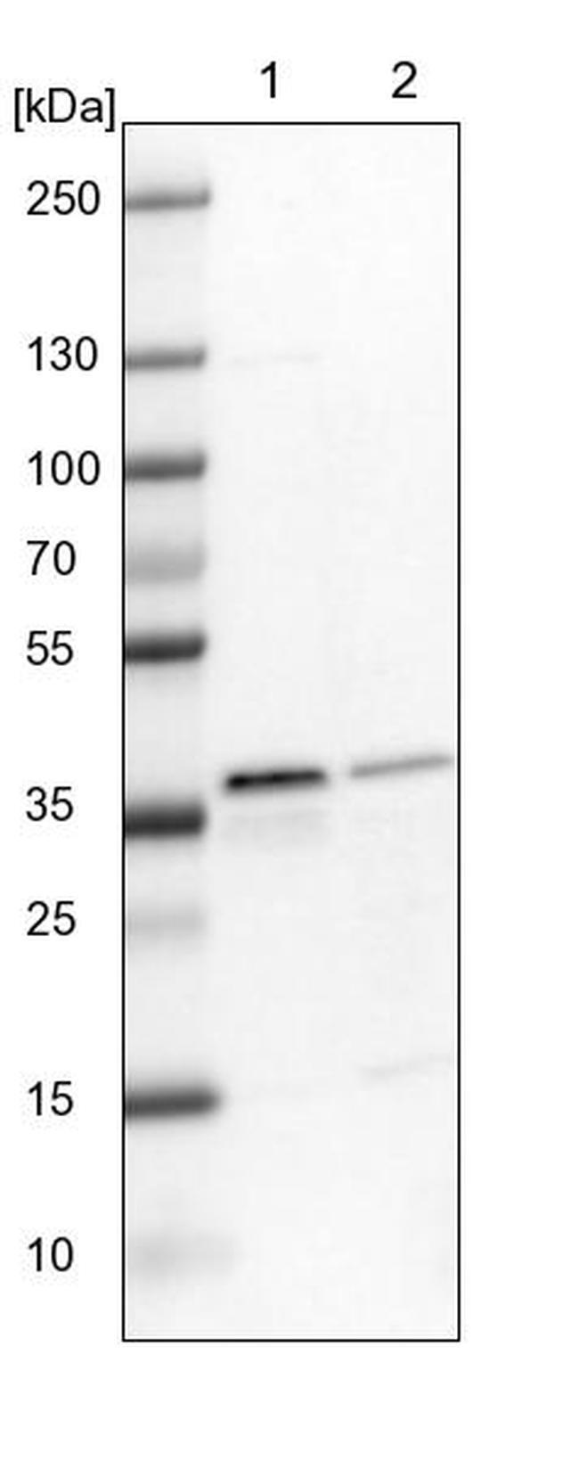 ELOVL7 Antibody in Western Blot (WB)