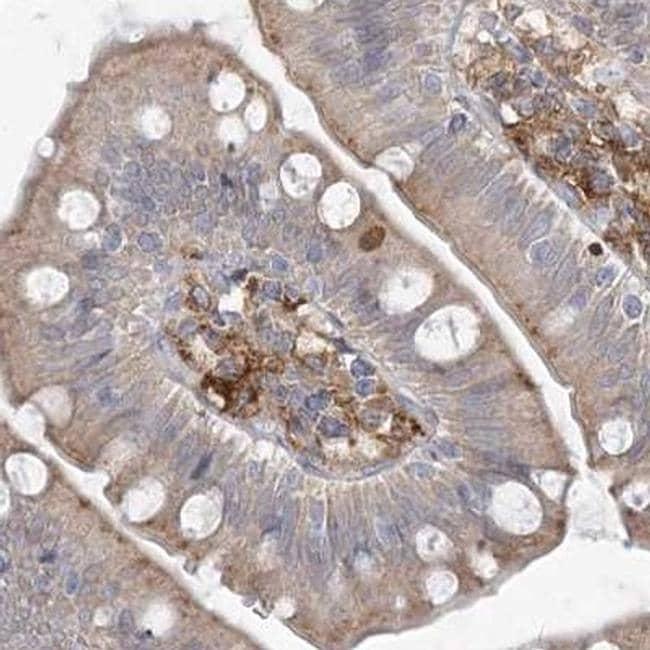 HAAO Antibody in Immunohistochemistry (IHC)