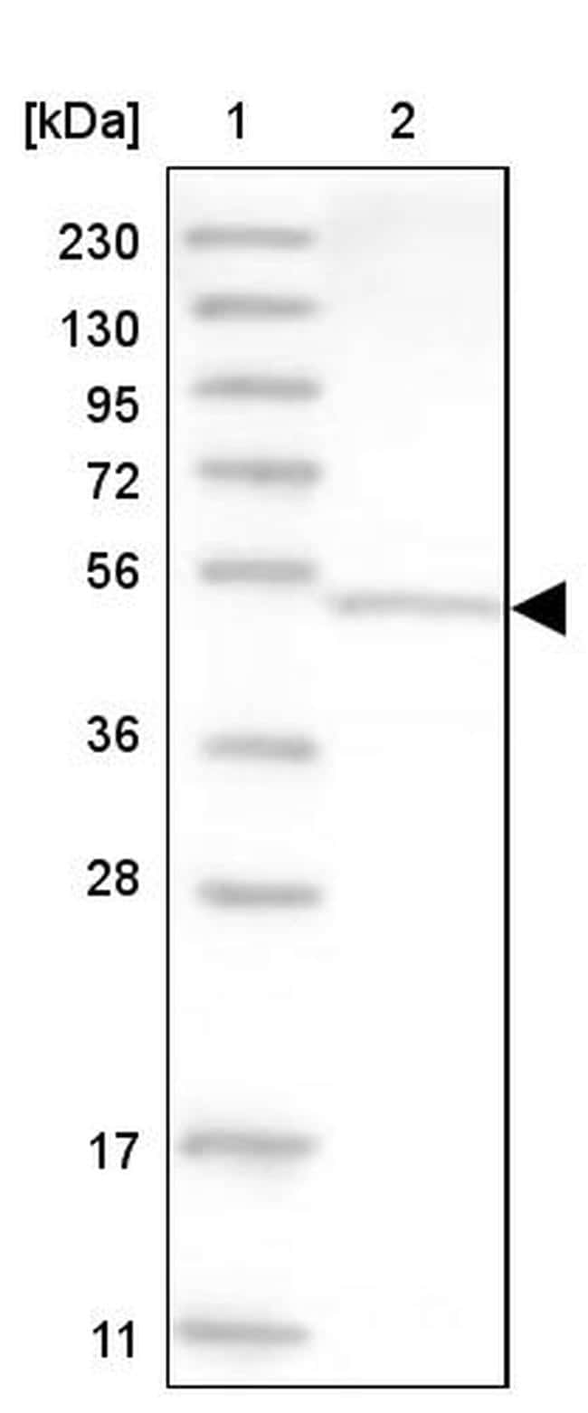 DNPEP Antibody in Western Blot (WB)