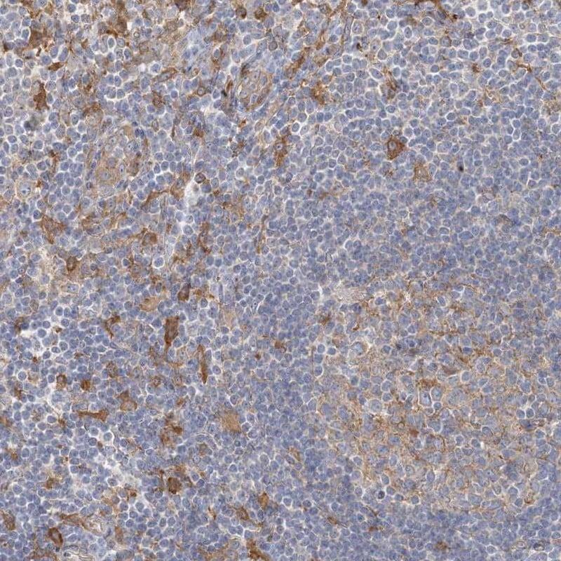 CCNJ Antibody in Immunohistochemistry (IHC)