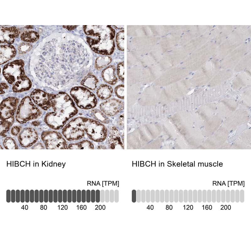 HIBCH Antibody in Relative expression