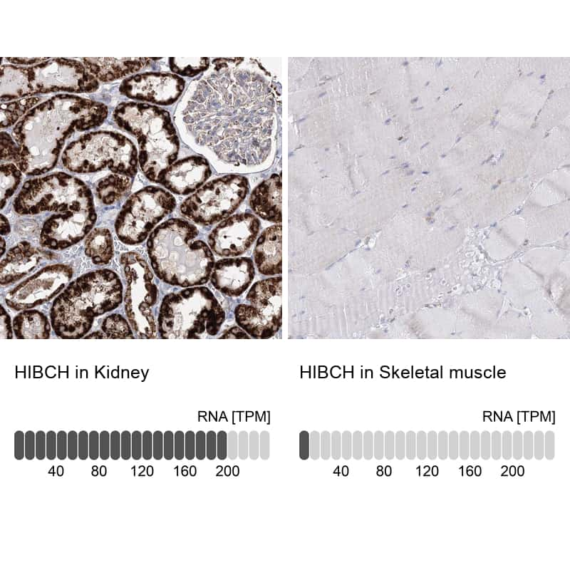 HIBCH Antibody in Immunohistochemistry (IHC)