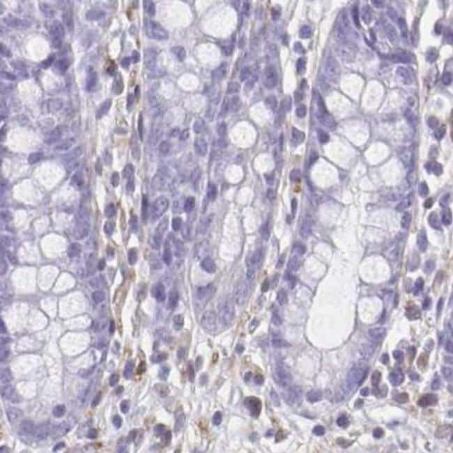 TPPP Antibody in Immunohistochemistry (IHC)