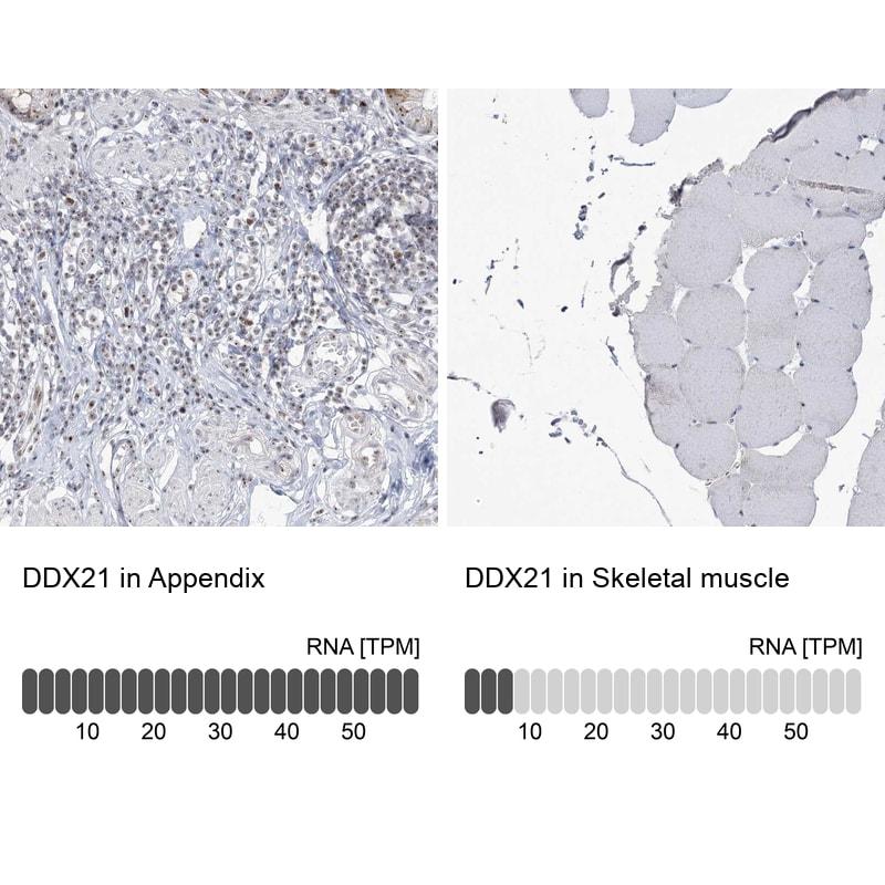 DDX21 Antibody in Relative expression