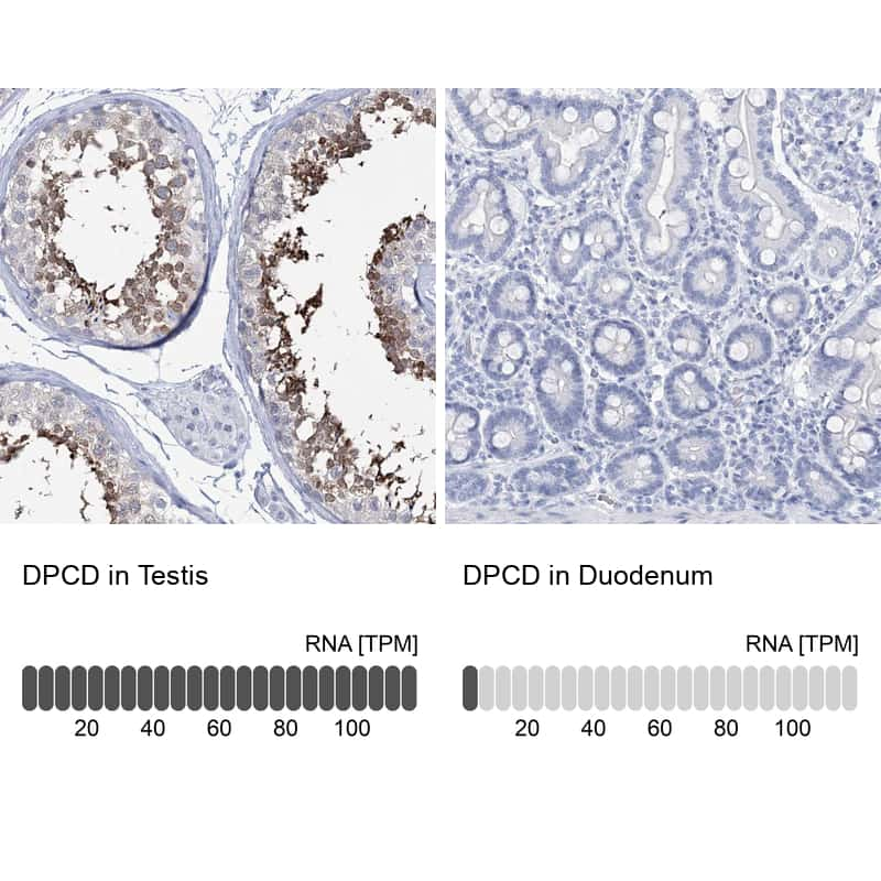 DPCD Antibody in Relative expression