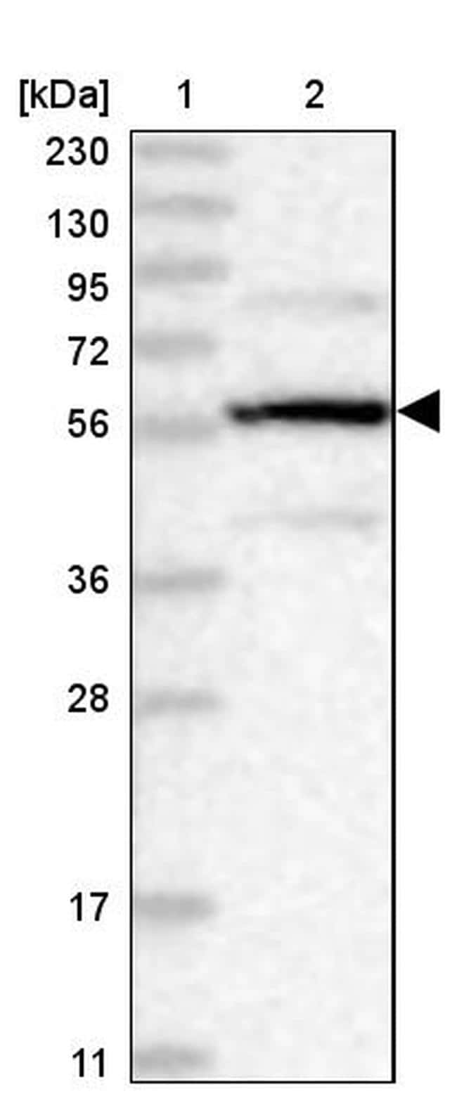 PPP2R5B Antibody in Western Blot (WB)