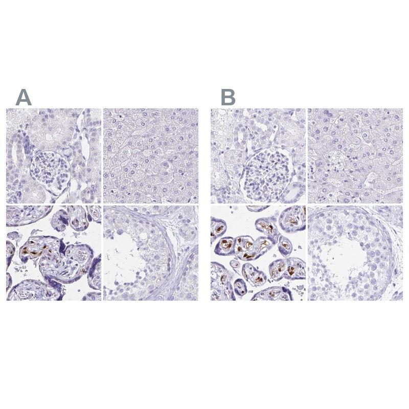 LIN28B Antibody in Immunohistochemistry (IHC)