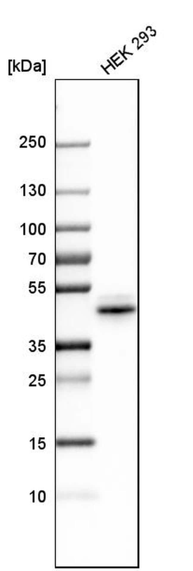 Nkx6.1 Antibody in Western Blot (WB)