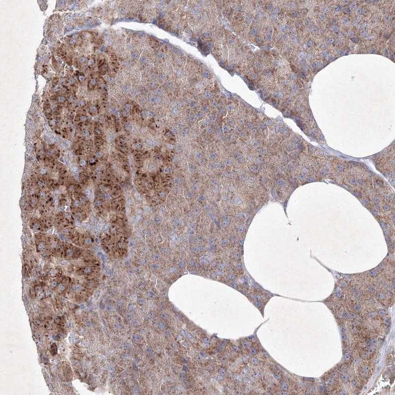 OPA1 Antibody in Immunohistochemistry (IHC)