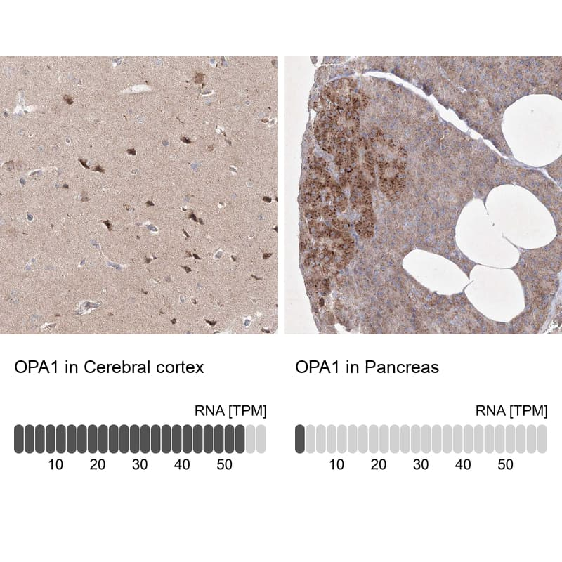 OPA1 Antibody in Relative expression