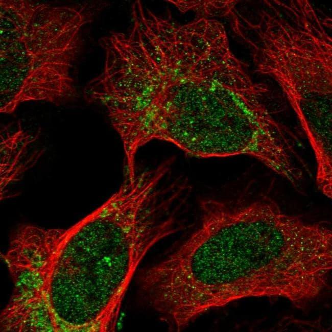 OPA1 Antibody in Immunofluorescence (IF)