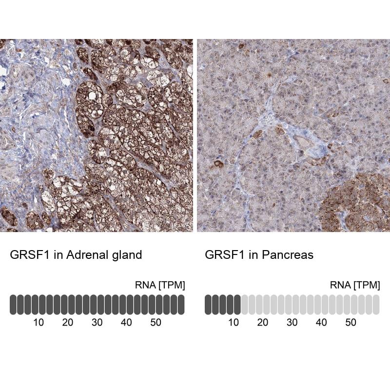 GRSF1 Antibody in Immunohistochemistry (IHC)