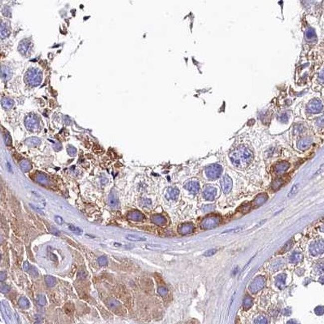 QARS Antibody in Immunohistochemistry (IHC)