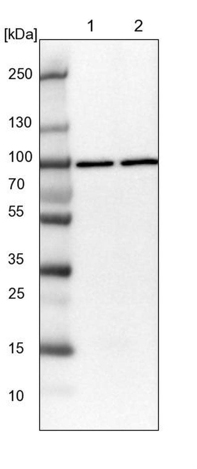 QARS Antibody in Western Blot (WB)