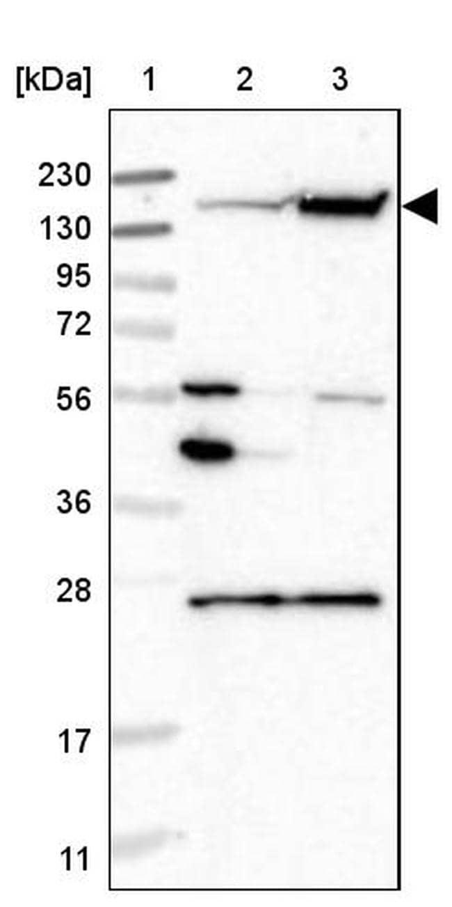 NCAPD2 Antibody in Western Blot (WB)