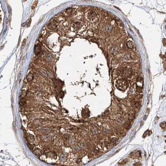 WDR37 Antibody in Immunohistochemistry (IHC)